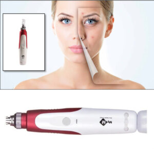 Acne Scars Removal Pen